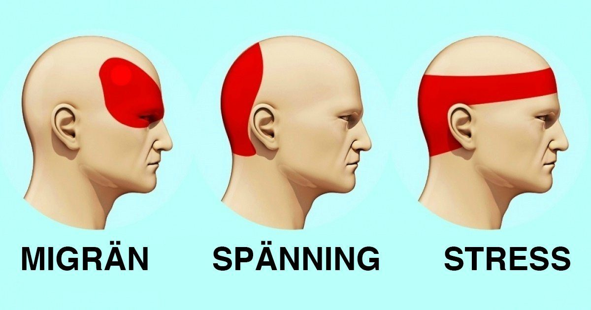 trykk bak øynene og hodepine